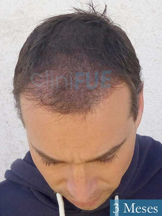 Jose Lusi 39 Madrid injerto de pelo 3 meses 2