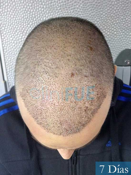 Jose Lusi 39 Madrid injerto de pelo 7 dias 3