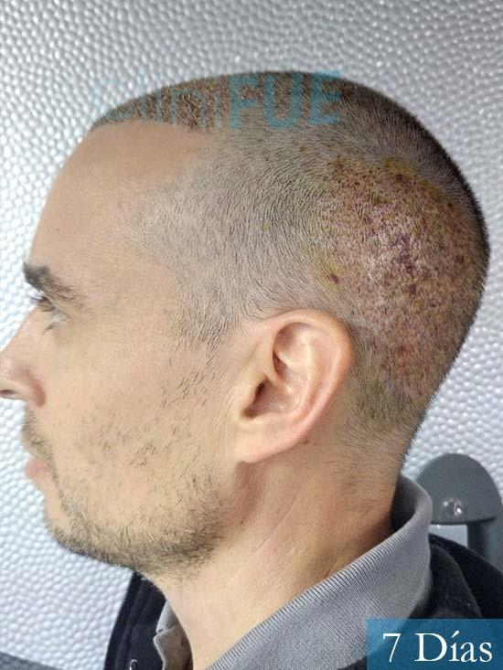 Jose Lusi 39 Madrid injerto de pelo 7 dias 5
