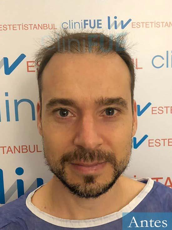 Jose Luis 39 Madrid injerto de pelo dia operacion antes
