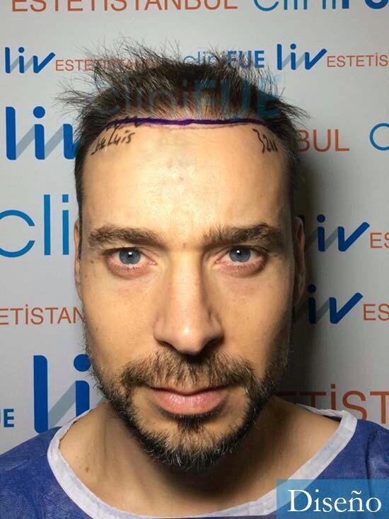 Jose Lusi 39 Madrid injerto de pelo dia operacion diseno