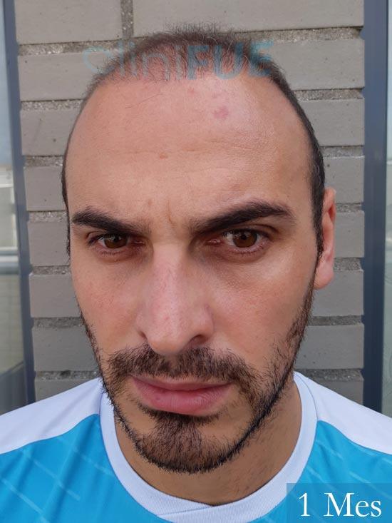 Juan José 31 Madrid injerto de pelo 1 mes