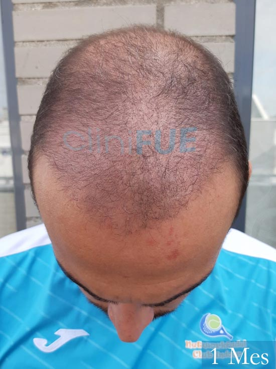 Juan José 31 Madrid injerto de pelo 1 mes 3