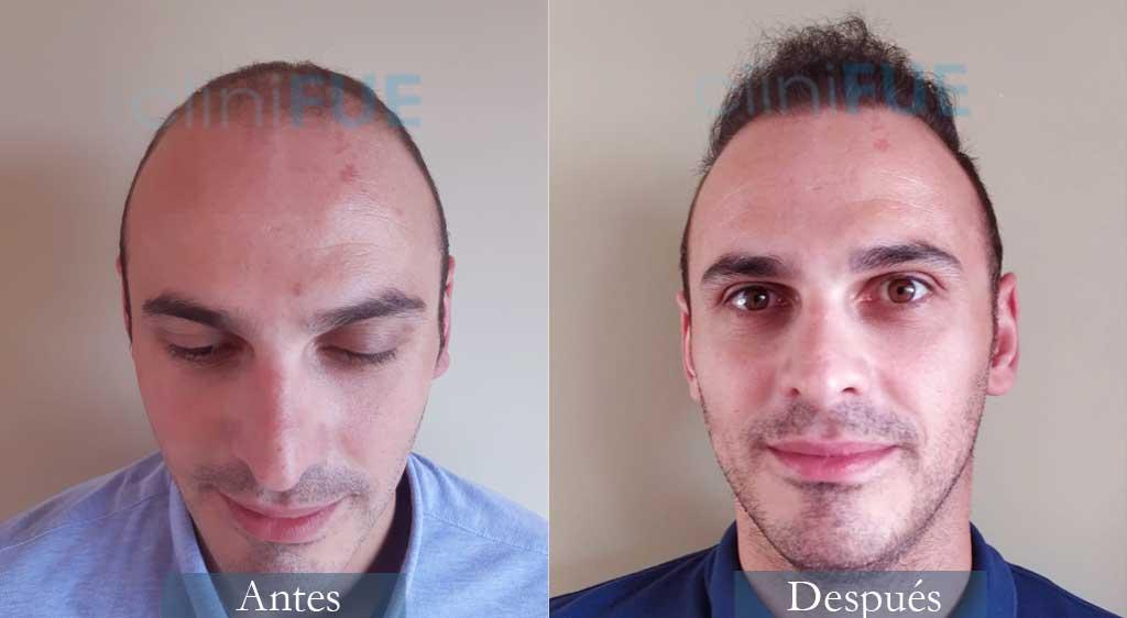 Injerto capilar de Juan José 31 Años de Madrid con cliniFUE