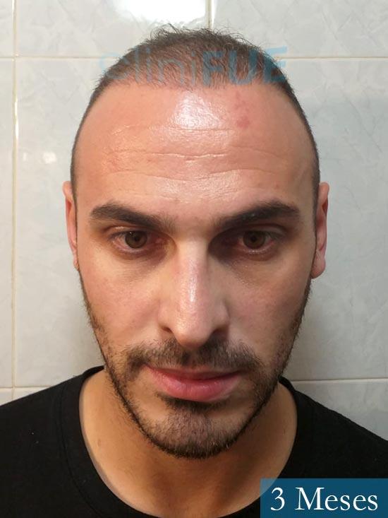 Juan José 31 Madrid injerto de pelo 3 meses