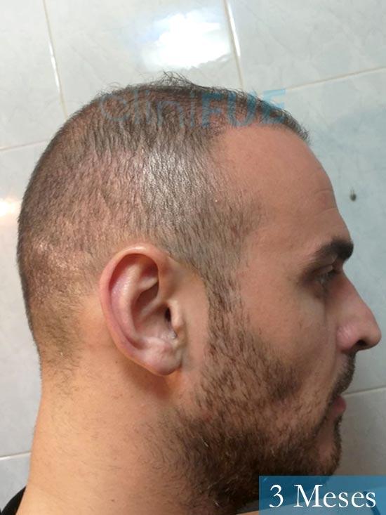 Juan José 31 Madrid injerto de pelo 3 meses 3