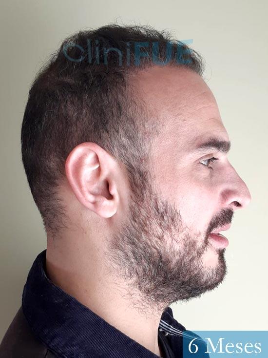 Juan José 31 Madrid injerto de pelo 6 meses 3