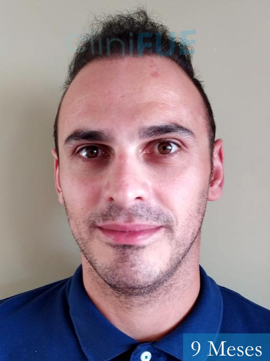 Juan José 31 Madrid injerto de pelo 9 meses