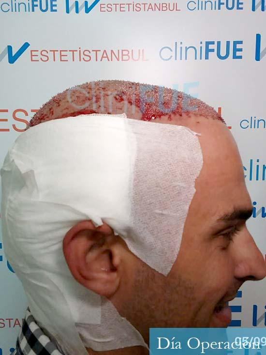 Juan José 31 Madrid injerto de pelo dia operacion 3