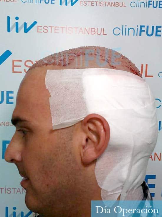 Juan José 31 Madrid injerto de pelo dia operacion 4
