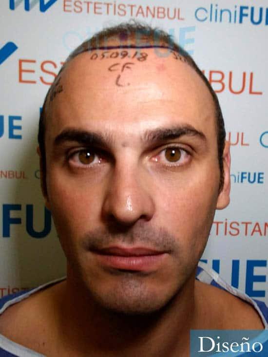 Juan José 31 Madrid injerto de pelo dia operacion diseno