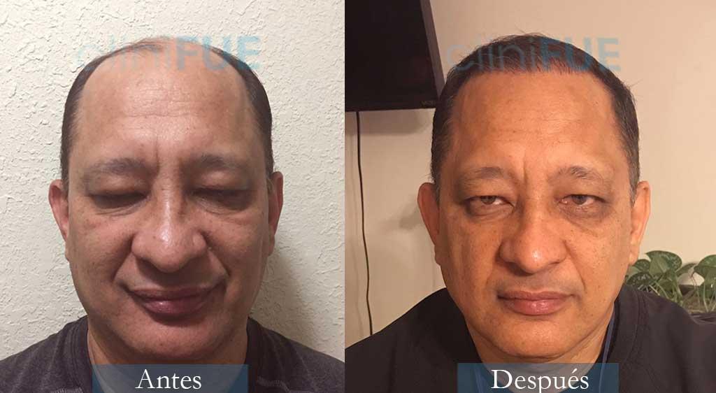 Pablo 54 Estados Unidos 3600UF injerto de pelo