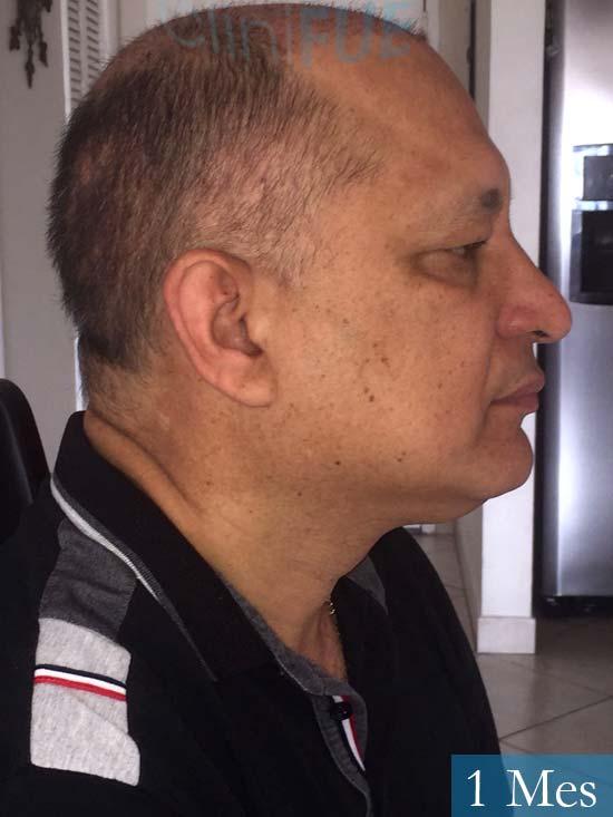 Pablo 54 Estados Unidos injerto de pelo dia operacion 1 mes 3