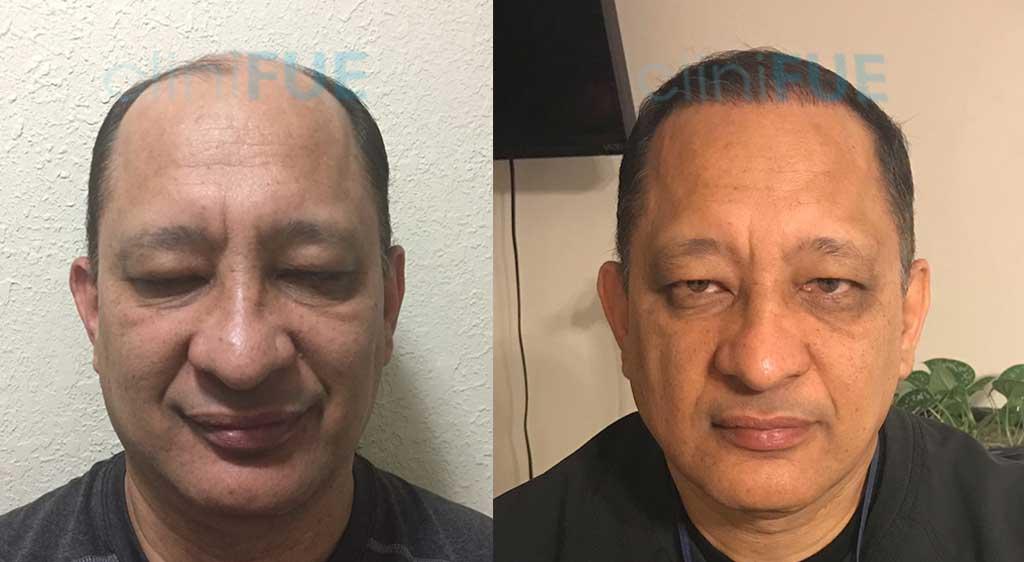 Injerto capilar de Pablo 54 Años de Estados Unidos con cliniFUE