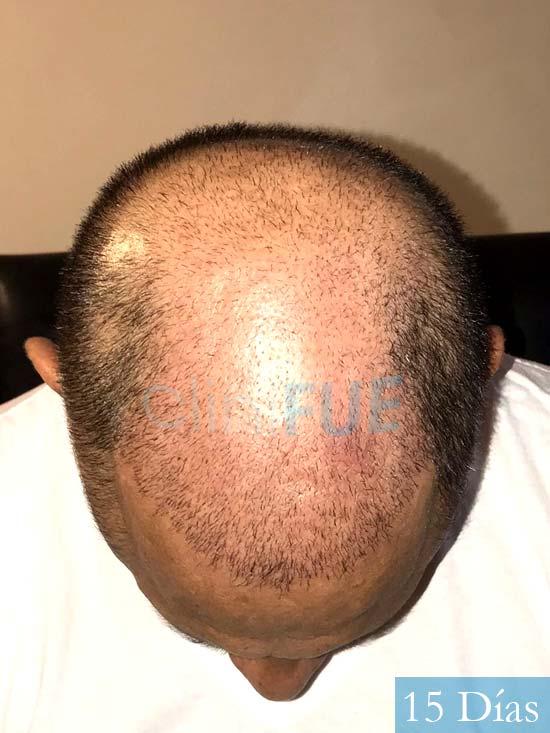 Pablo 54 Estados Unidos injerto de pelo dia operacion 15 dias 3