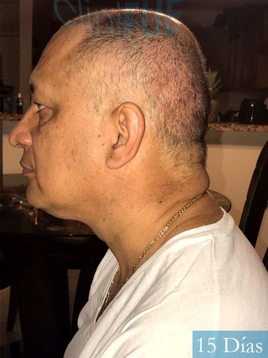 Pablo 54 Estados Unidos injerto de pelo dia operacion 15 dias 4
