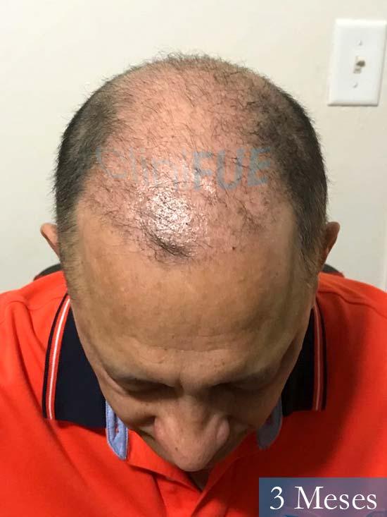 Pablo 54 Estados Unidos injerto de pelo dia operacion 3 meses 2