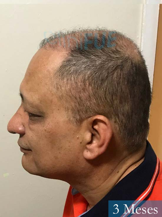 Pablo 54 Estados Unidos injerto de pelo dia operacion 3 meses 3