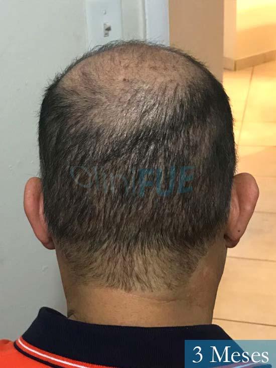 Pablo 54 Estados Unidos injerto de pelo dia operacion 3 meses 5