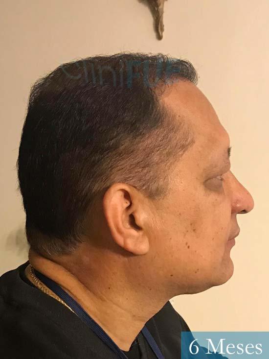Pablo 54 Estados Unidos injerto de pelo dia operacion 6 meses 4