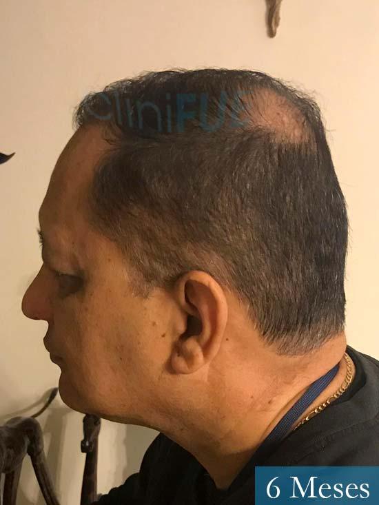 Pablo 54 Estados Unidos injerto de pelo dia operacion 6 meses 5