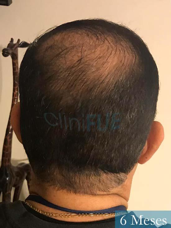 Pablo 54 Estados Unidos injerto de pelo dia operacion 6 meses 6