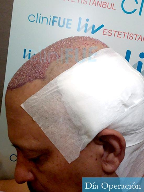 Pablo 54 Estados Unidos injerto de pelo dia operacion dia operacion 4