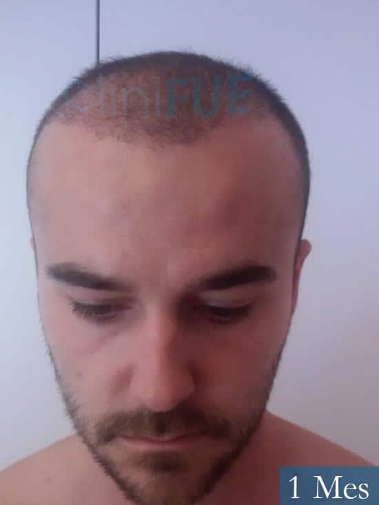 Pedro 32 anos Barcelona injerto de pelo 1 mes