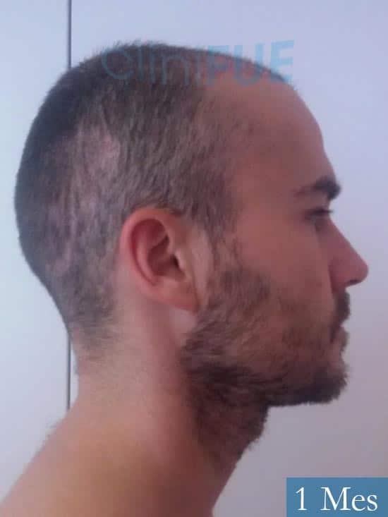 Pedro 32 anos Barcelona injerto de pelo 1 mes 3