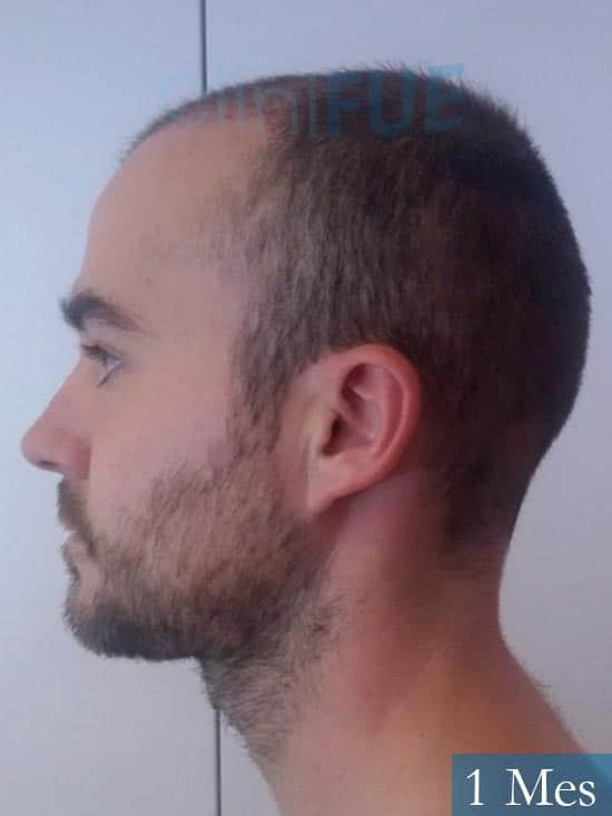 Pedro 32 anos Barcelona injerto de pelo 1 mes 4