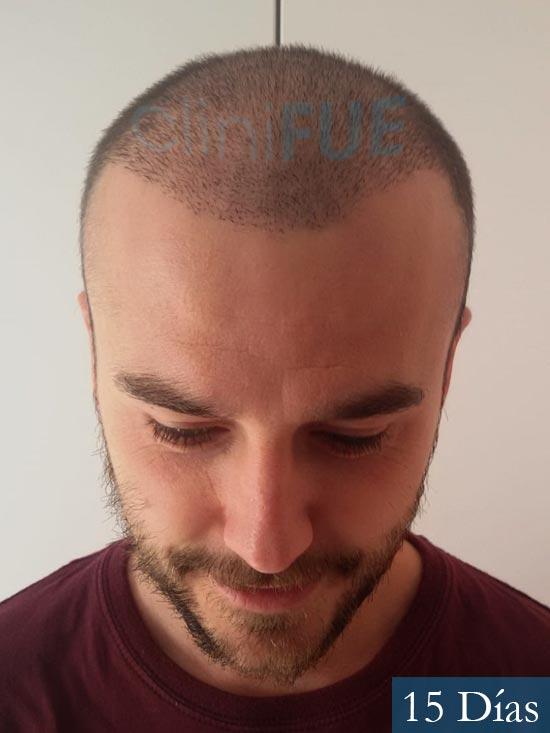 Pedro 32 anos Barcelona injerto de pelo 15 dias