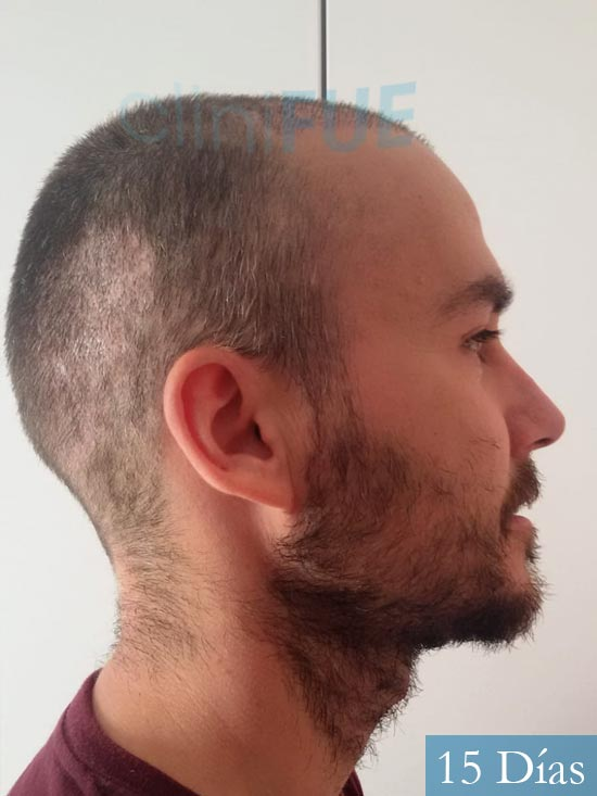 Pedro 32 anos Barcelona injerto de pelo 15 dias 2