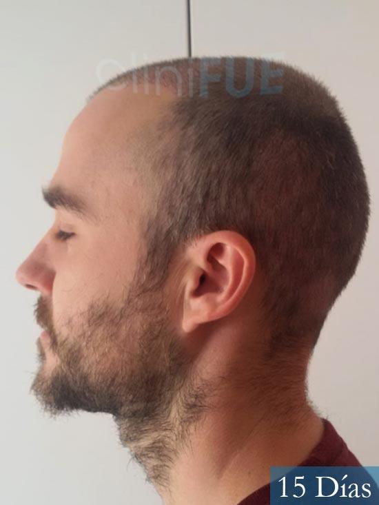 Pedro 32 anos Barcelona injerto de pelo 15 dias 3