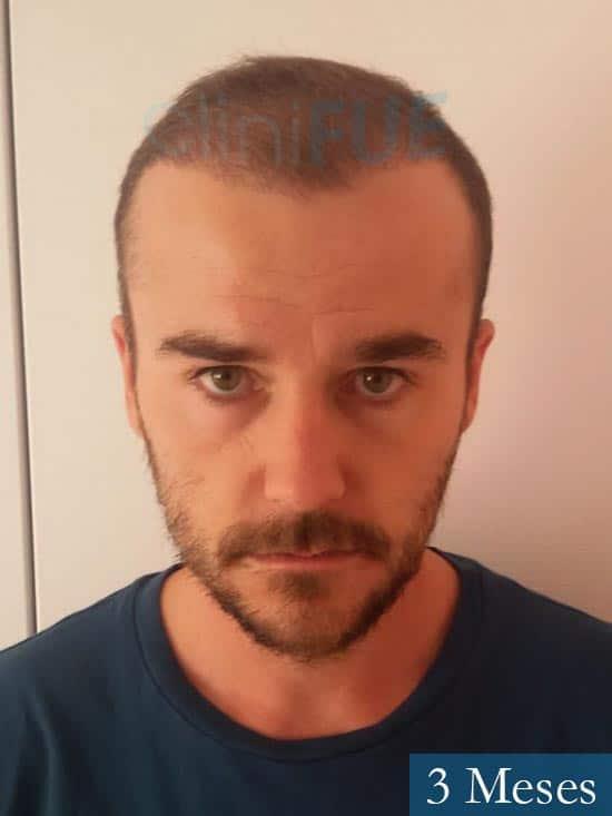 Pedro 32 anos Barcelona injerto de pelo 3 meses