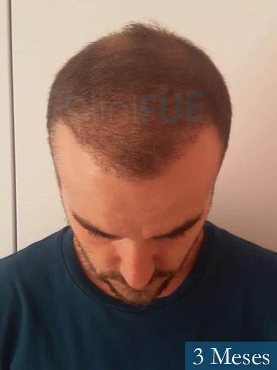 Pedro 32 anos Barcelona injerto de pelo 3 meses 2