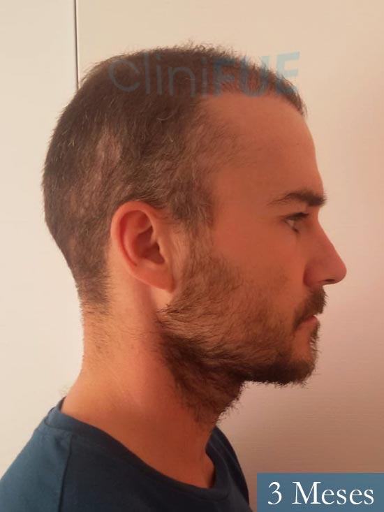 Pedro 32 anos Barcelona injerto de pelo 3 meses 3
