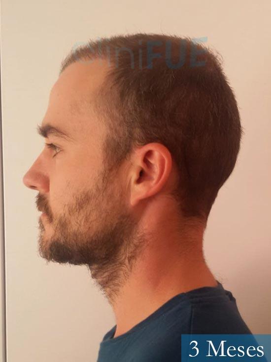 Pedro 32 anos Barcelona injerto de pelo 3 meses 4