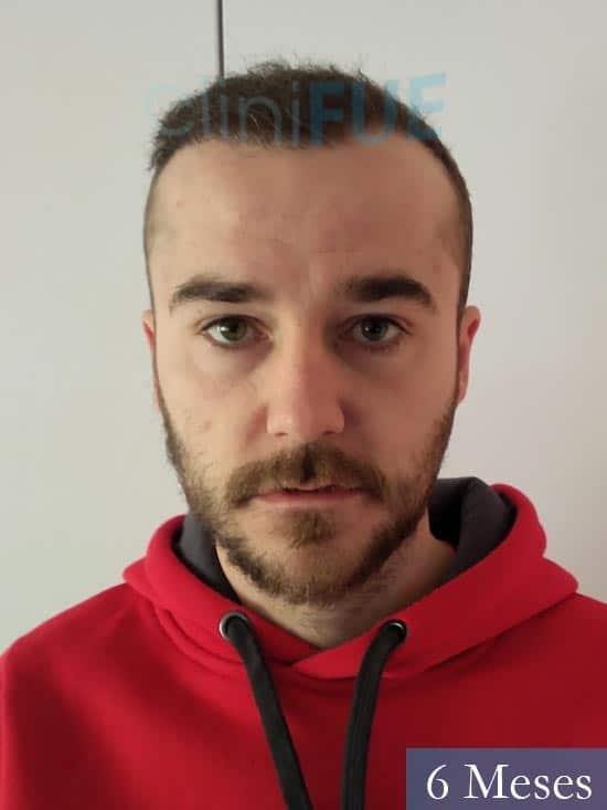 Pedro 32 anos Barcelona injerto de pelo 6 meses