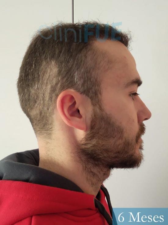Pedro 32 anos Barcelona injerto de pelo 6 meses 3