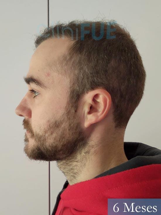 Pedro 32 anos Barcelona injerto de pelo 6 meses 4