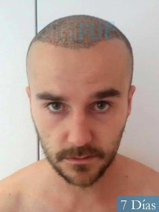 Pedro 32 anos Barcelona injerto de pelo 7 dias