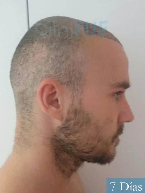 Pedro 32 anos Barcelona injerto de pelo 7 dias 3