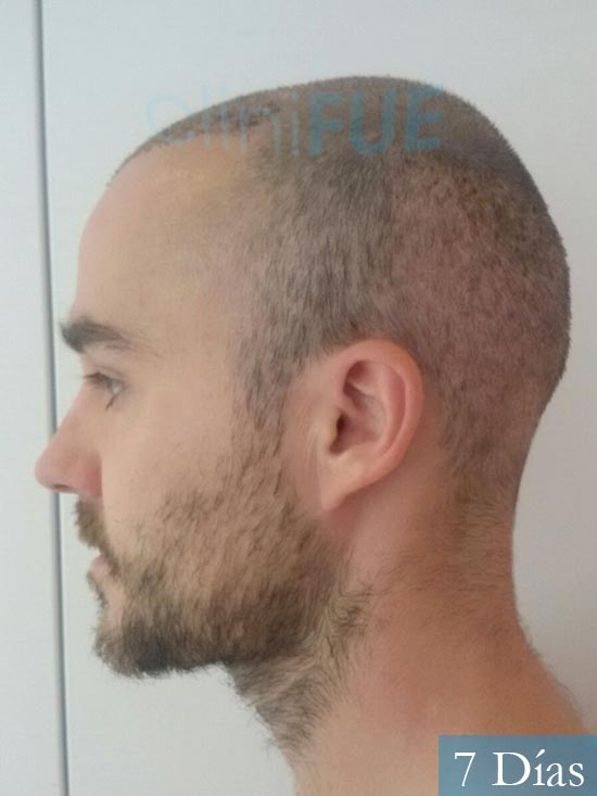 Pedro 32 anos Barcelona injerto de pelo 7 dias 4