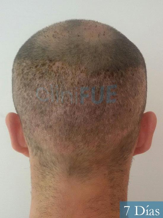 Pedro 32 anos Barcelona injerto de pelo 7 dias 5