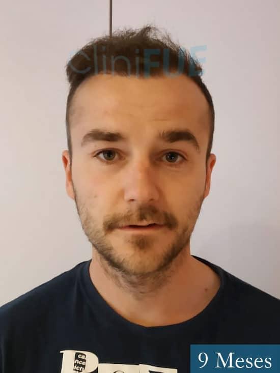 Pedro 32 anos Barcelona injerto de pelo 9 meses