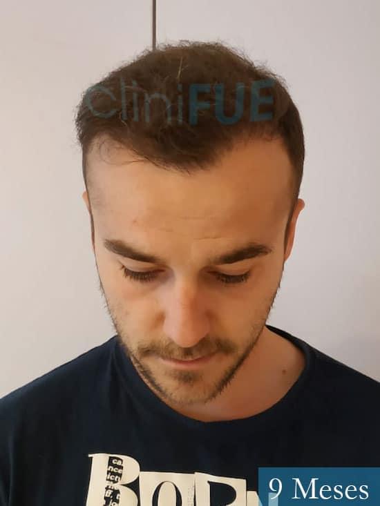 Pedro 32 anos Barcelona injerto de pelo 9 meses 2