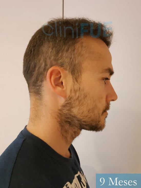 Pedro 32 anos Barcelona injerto de pelo 9 meses 3