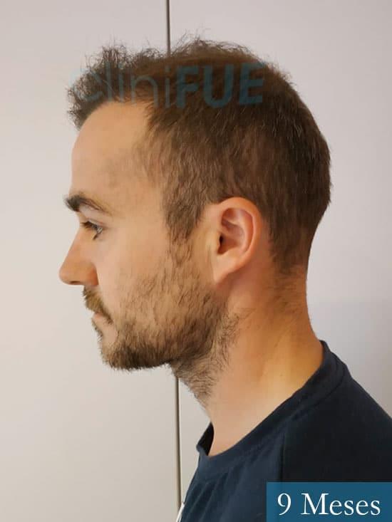 Pedro 32 anos Barcelona injerto de pelo 9 meses 4