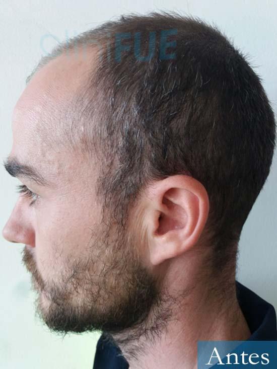 Pedro 32 anos Barcelona injerto de pelo Antes 4