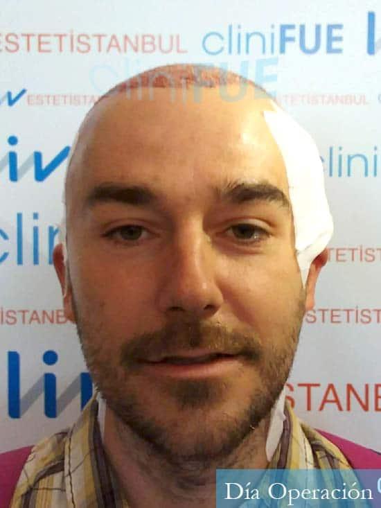 Pedro 32 anos Barcelona injerto de pelo dia operacion